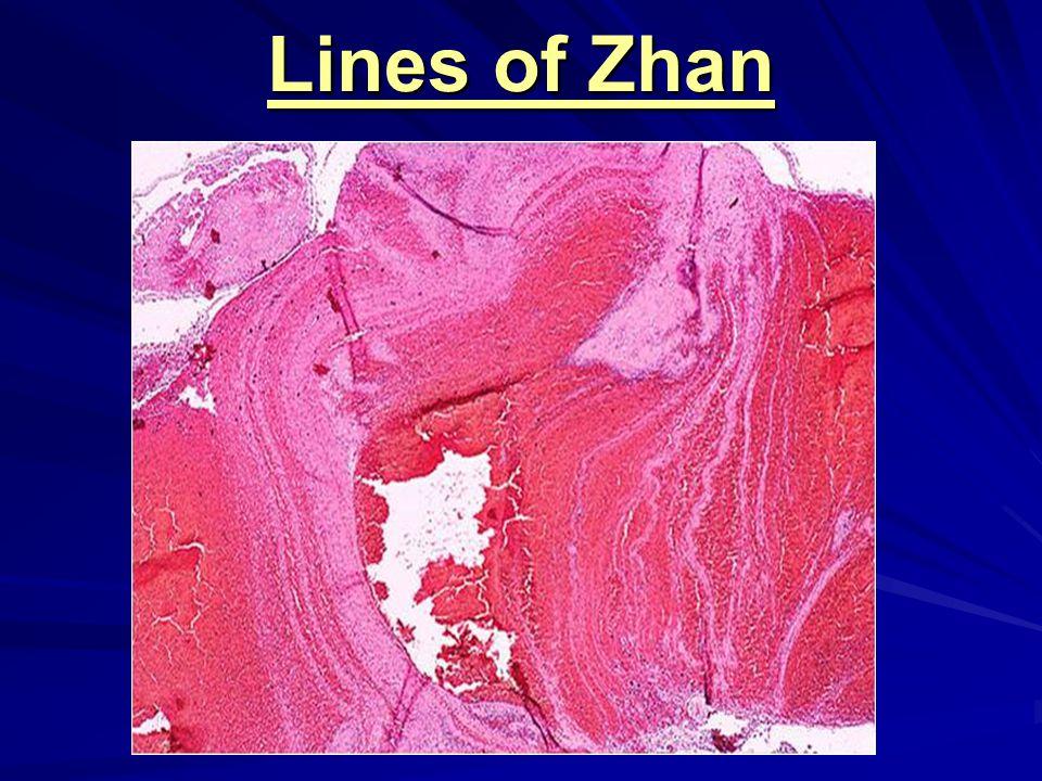Lines of Zhan