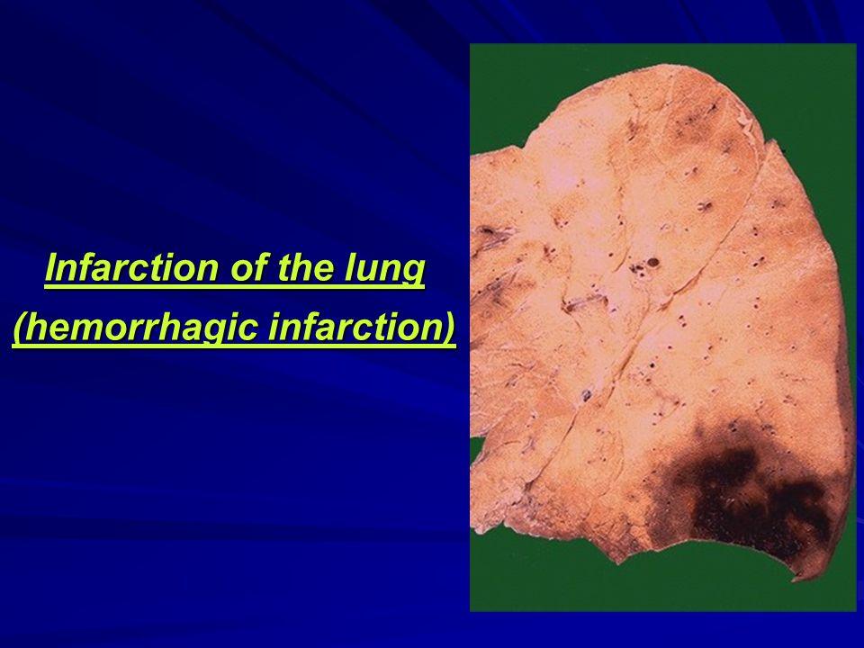 Infarction of the lung (hemorrhagic infarction)