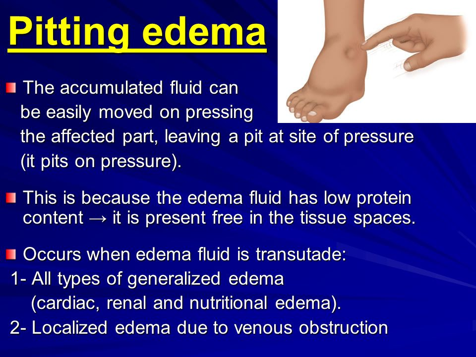 Pitting edema The accumulated fluid can be easily moved on pressing be easily moved on pressing the affected part, leaving a pit at site of pressure t
