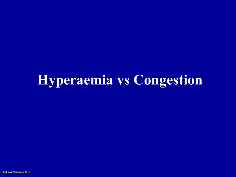 2nd Year Pathology 2010 Hyperaemia vs Congestion