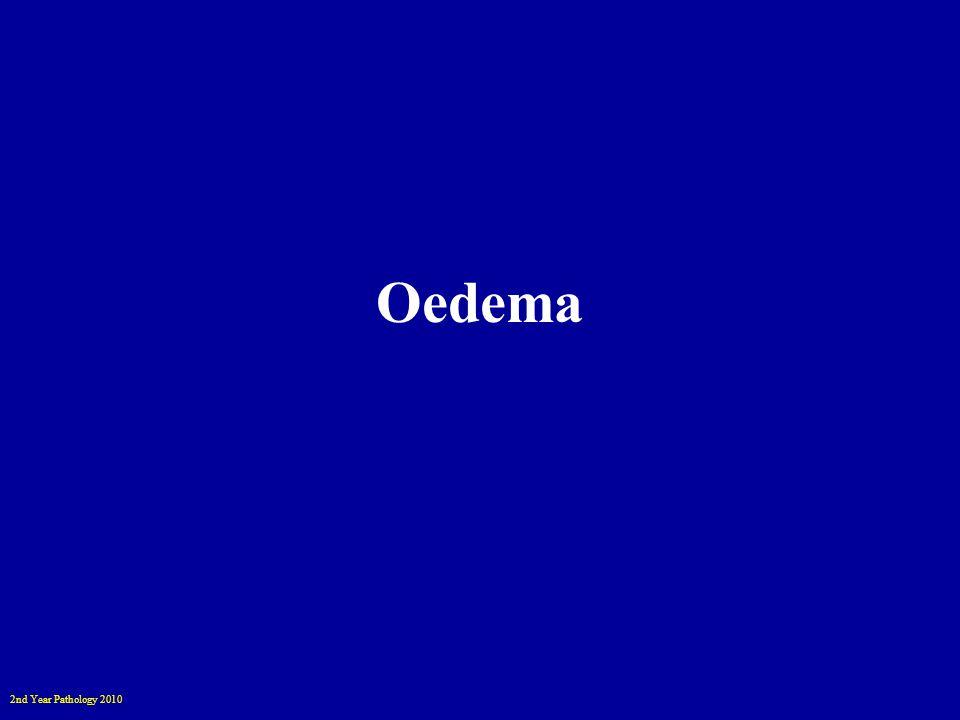 2nd Year Pathology 2010 Cerebral Oedema & Herniation Tonsillar herniation and pontine haemorrhage