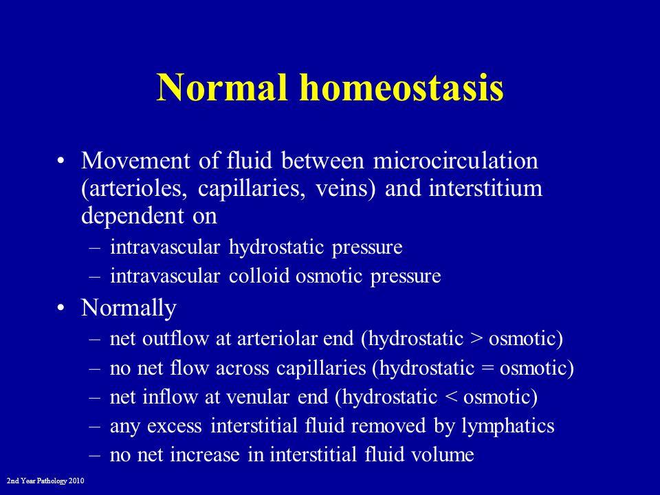 2nd Year Pathology 2010 Inflammation Due to vasodilation and hyperpermeable vessels –vasoactive mediators e.g.