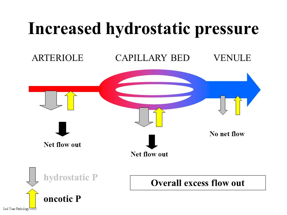 2nd Year Pathology 2010 Decreased oncotic pressure ARTERIOLEVENULECAPILLARY BED No net flow Net flow out hydrostatic P oncotic P Net flow out Overall excess flow out