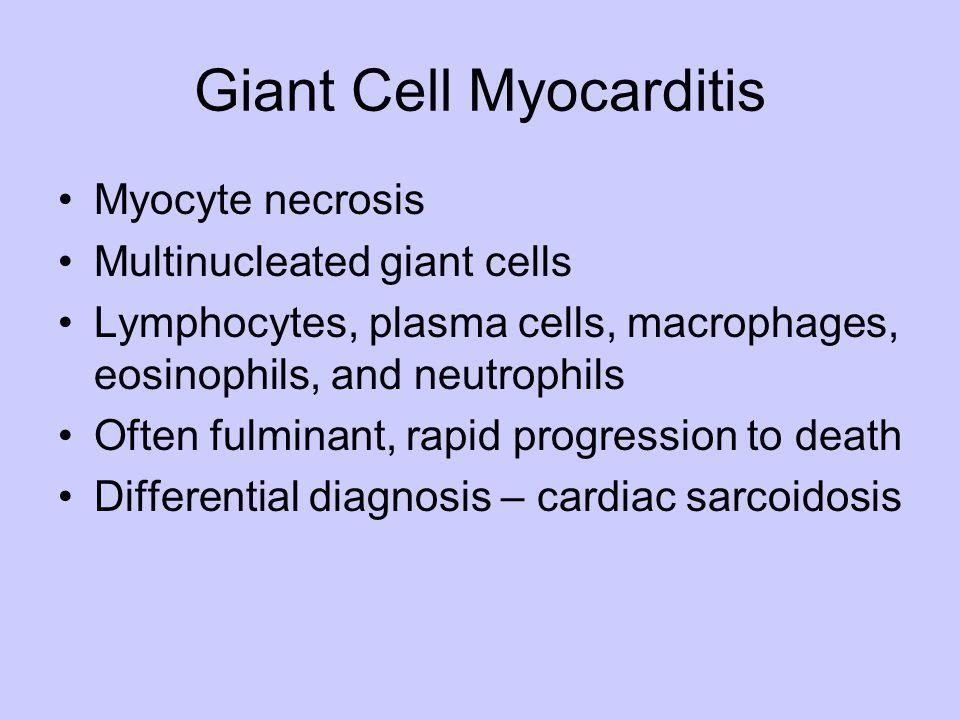 Giant Cell Myocarditis Myocyte necrosis Multinucleated giant cells Lymphocytes, plasma cells, macrophages, eosinophils, and neutrophils Often fulminan