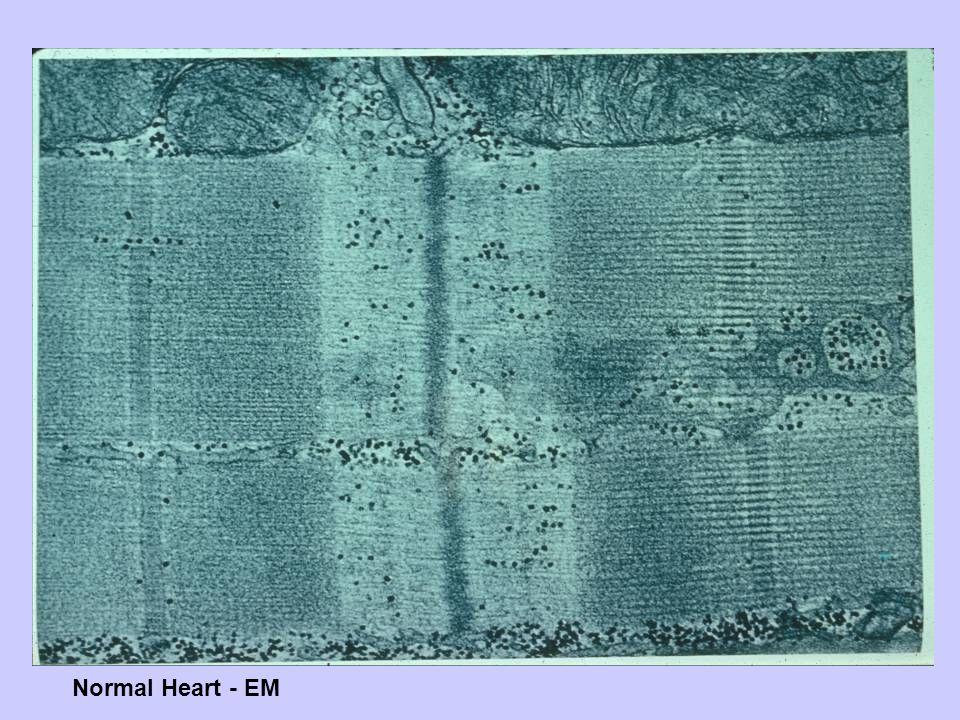 Normal Heart - EM