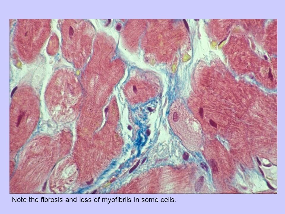 Note the fibrosis and loss of myofibrils in some cells.