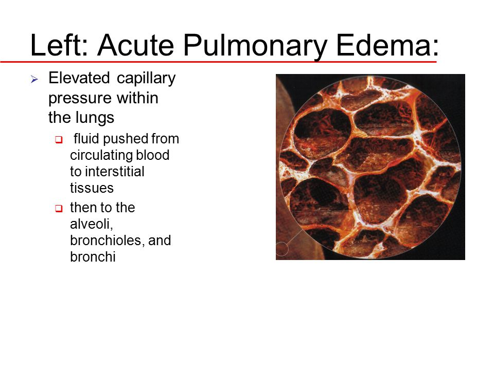 Left: Acute Pulmonary Edema:  Elevated capillary pressure within the lungs  fluid pushed from circulating blood to interstitial tissues  then to th