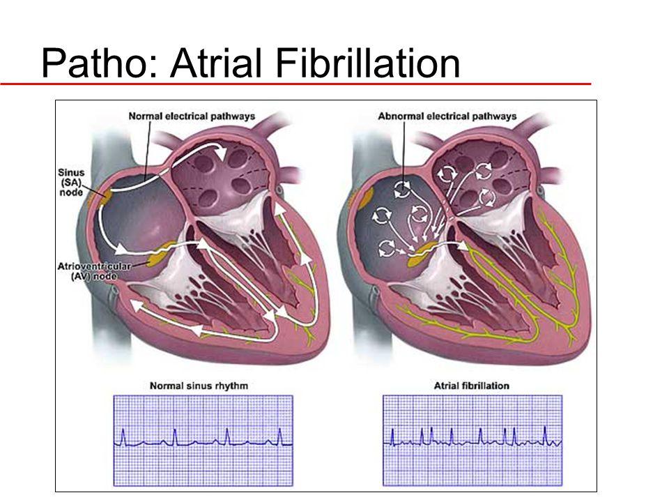 Patho: Atrial Fibrillation