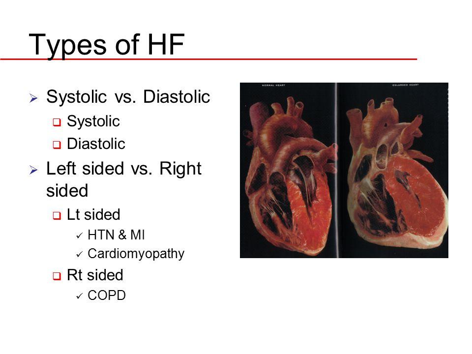 Types of HF  Systolic vs. Diastolic  Systolic  Diastolic  Left sided vs. Right sided  Lt sided HTN & MI Cardiomyopathy  Rt sided COPD