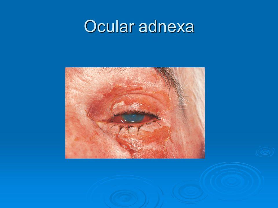 Ocular adnexa