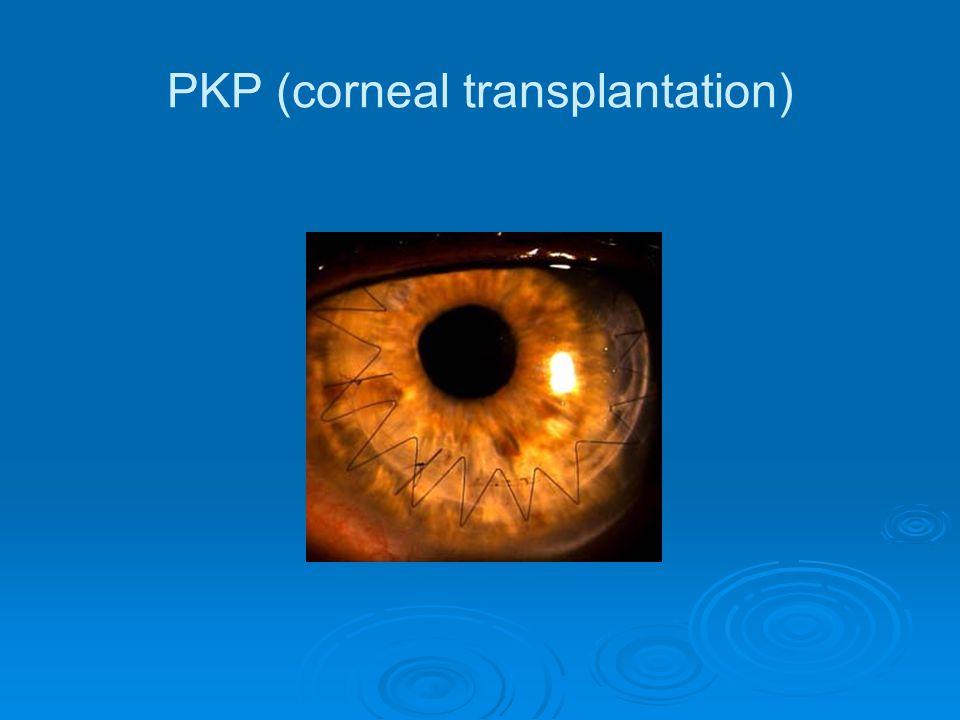 PKP (corneal transplantation)