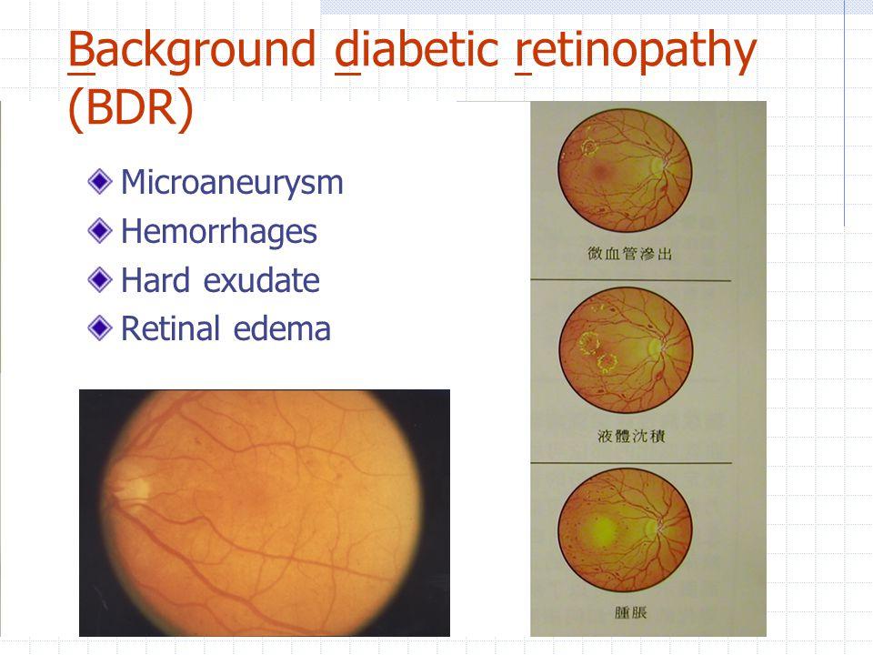 Background diabetic retinopathy (BDR) Microaneurysm Hemorrhages Hard exudate Retinal edema