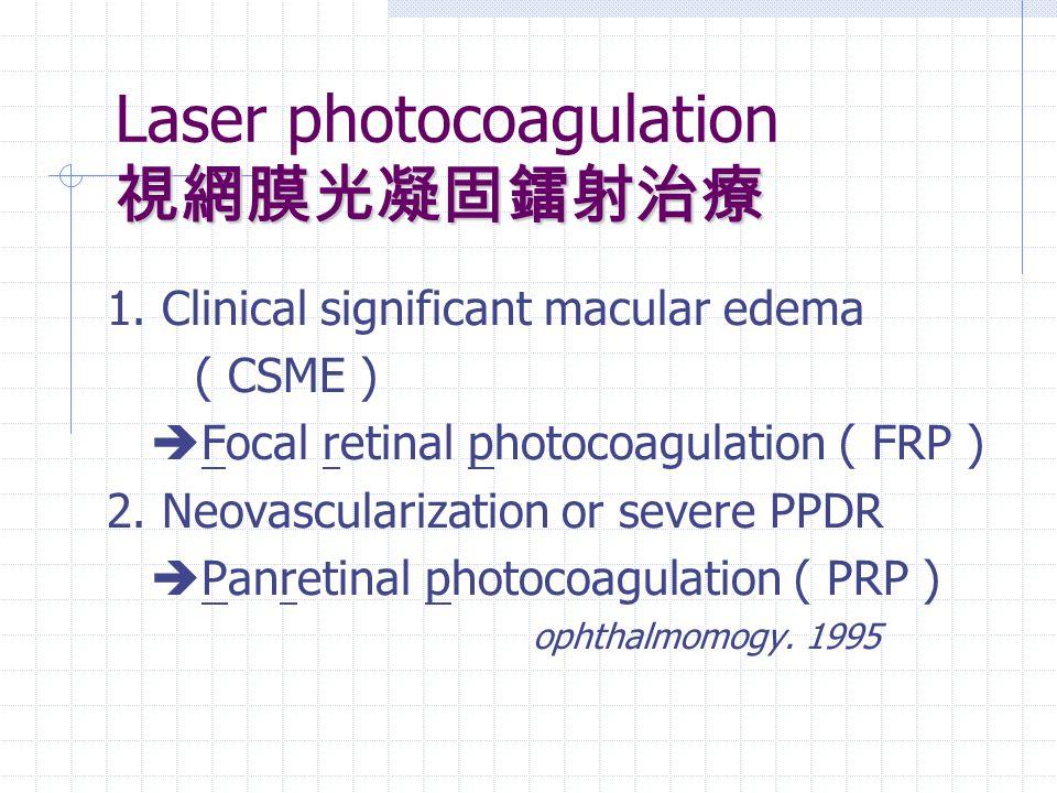 視網膜光凝固鐳射治療 Laser photocoagulation 視網膜光凝固鐳射治療 1. Clinical significant macular edema ( CSME )  Focal retinal photocoagulation ( FRP ) 2. Neovasculariza