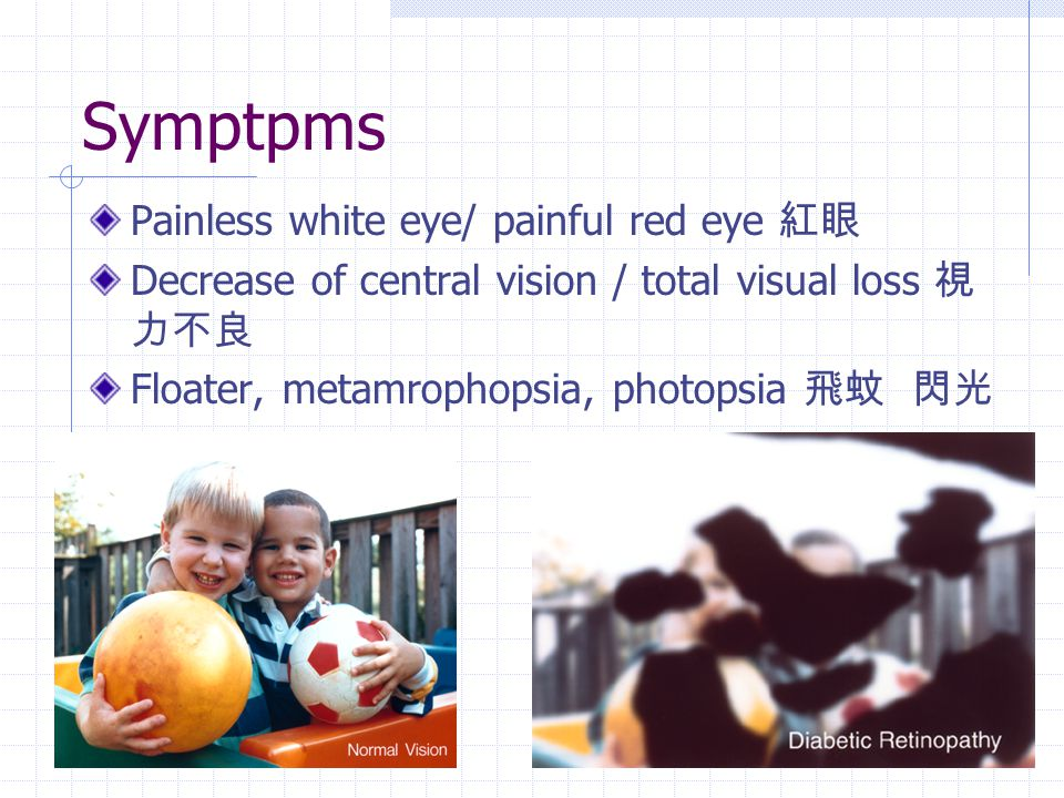 Symptpms Painless white eye/ painful red eye 紅眼 Decrease of central vision / total visual loss 視 力不良 Floater, metamrophopsia, photopsia 飛蚊 閃光