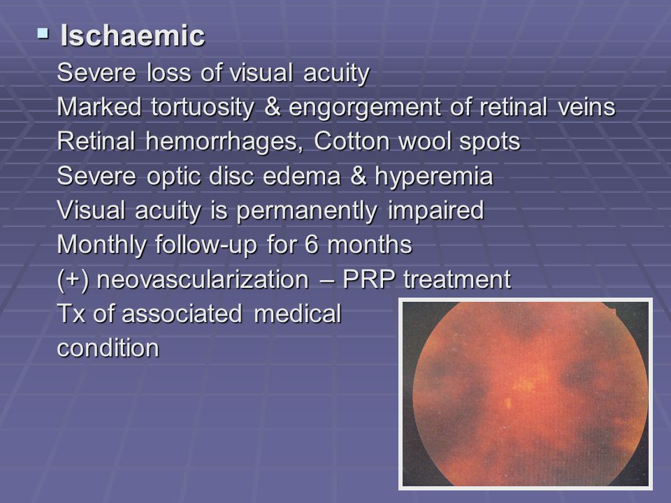  Ischaemic Severe loss of visual acuity Severe loss of visual acuity Marked tortuosity & engorgement of retinal veins Marked tortuosity & engorgement of retinal veins Retinal hemorrhages, Cotton wool spots Retinal hemorrhages, Cotton wool spots Severe optic disc edema & hyperemia Severe optic disc edema & hyperemia Visual acuity is permanently impaired Visual acuity is permanently impaired Monthly follow-up for 6 months Monthly follow-up for 6 months (+) neovascularization – PRP treatment (+) neovascularization – PRP treatment Tx of associated medical Tx of associated medical condition condition