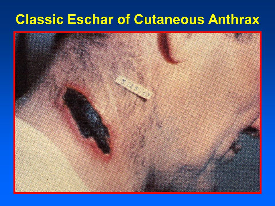Classic Eschar of Cutaneous Anthrax