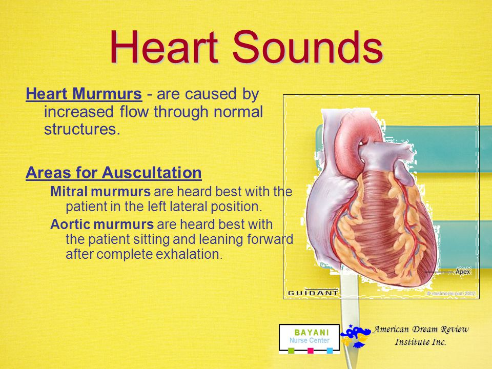 Heart Sounds Classifications –Diastolic Murmurs - occur between S2 and S1. Seen in mitral or tricuspid stenosis, aortic or pulmonic insufficiency. –Sy