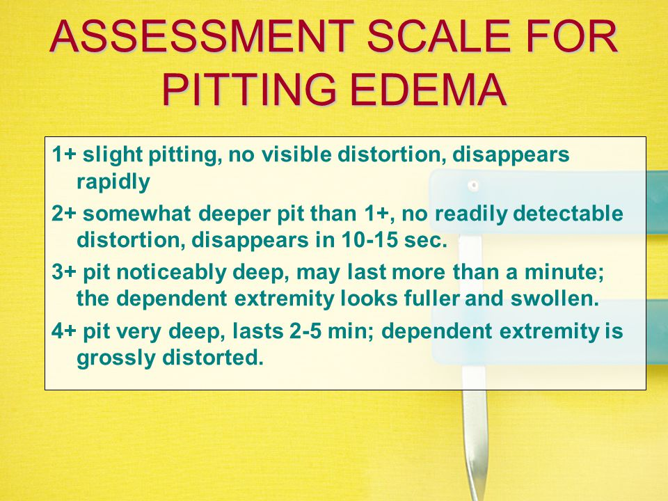 Peripheral Edema Edema, or fluid in the tissues tends to go to dependent areas of the body. This may be the hands, feet or sacrum. For the bed rest pa