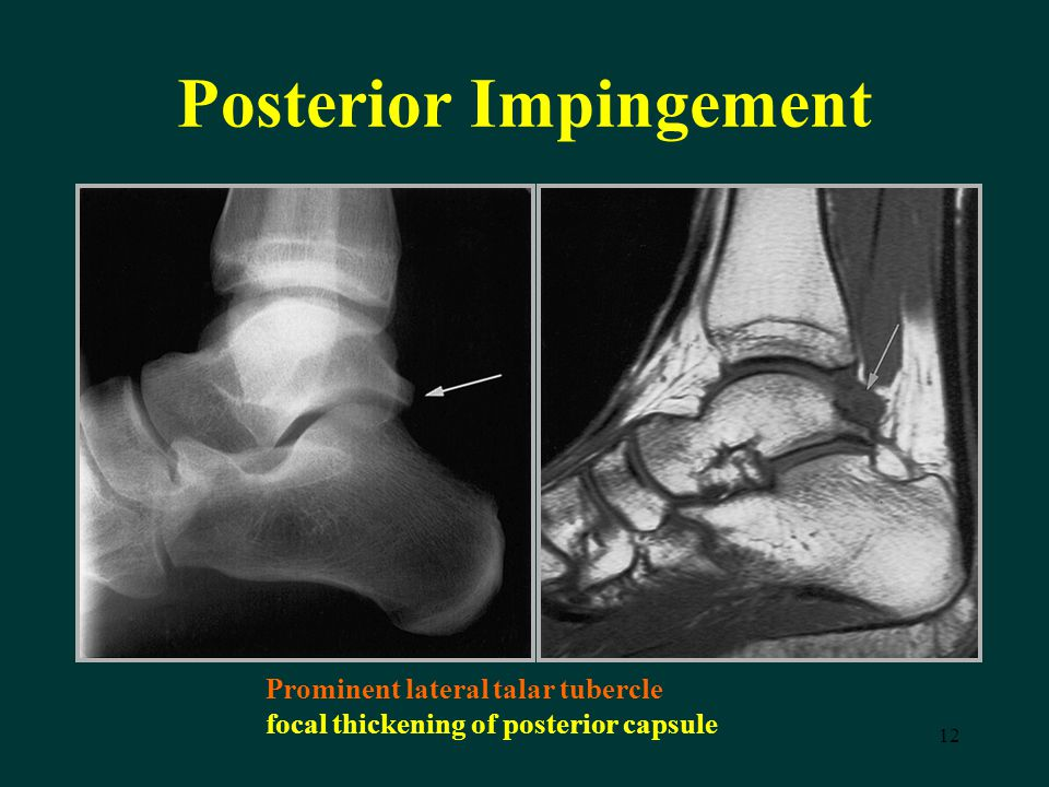 12 Posterior Impingement Prominent lateral talar tubercle focal thickening of posterior capsule