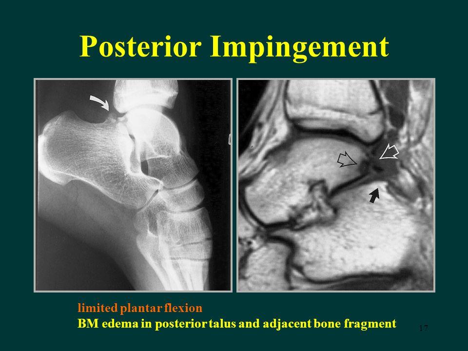 17 Posterior Impingement limited plantar flexion BM edema in posterior talus and adjacent bone fragment