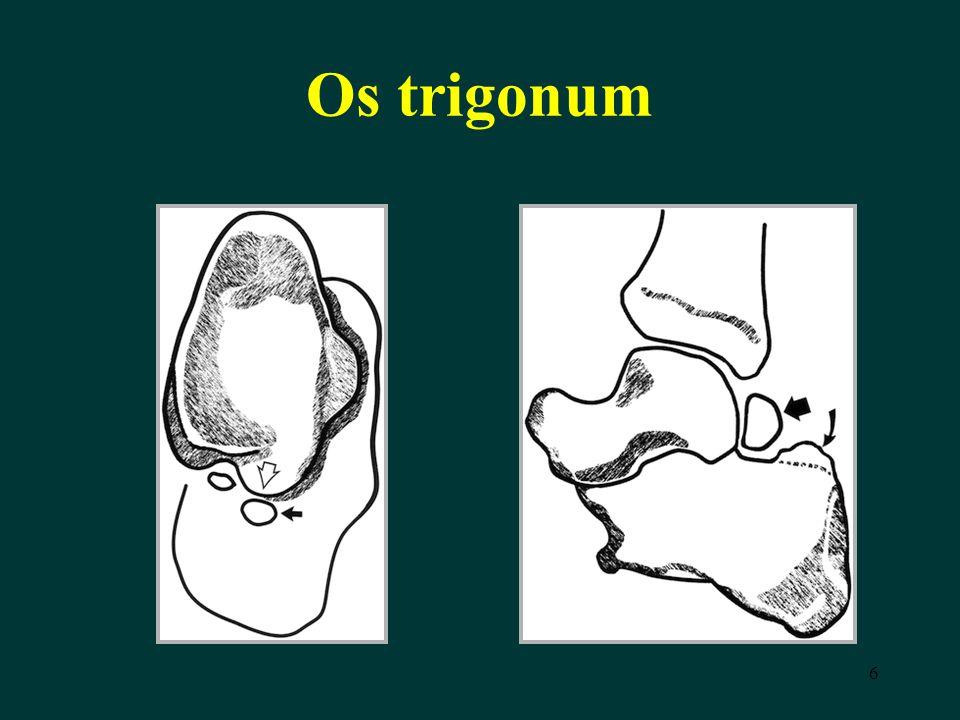 6 Os trigonum