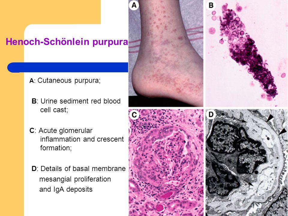 Henoch-Schönlein purpura. A: Cutaneous purpura; B: Urine sediment red blood cell cast; C: Acute glomerular inflammation and crescent formation; D: Det