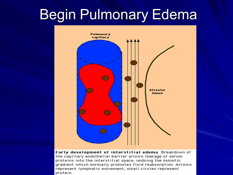 Begin Pulmonary Edema