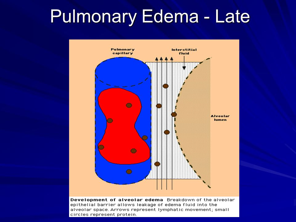Pulmonary Edema - Late