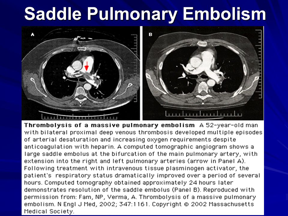 Saddle Pulmonary Embolism