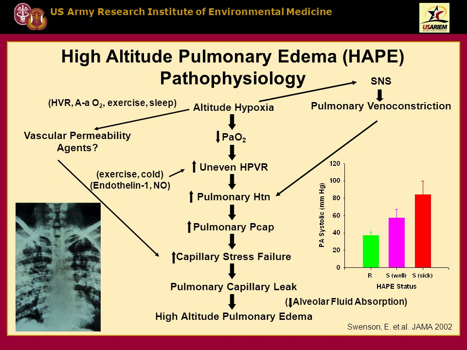 US Army Research Institute of Environmental Medicine Altitude Hypoxia PaO 2 Uneven HPVR Pulmonary Htn Pulmonary Pcap Capillary Stress Failure Pulmonary Capillary Leak High Altitude Pulmonary Edema SNS Pulmonary Venoconstriction Vascular Permeability Agents.