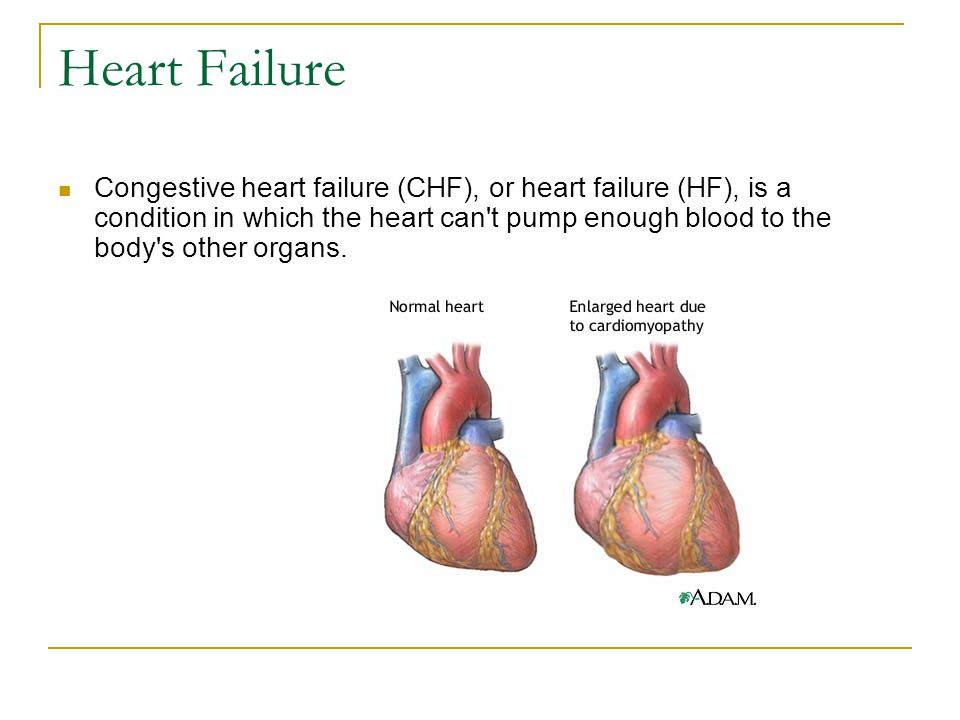 Heart Failure Congestive heart failure (CHF), or heart failure (HF), is a condition in which the heart can t pump enough blood to the body s other organs.