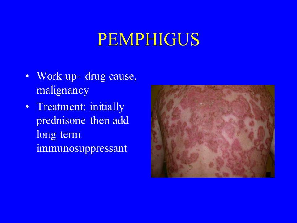 Work-up- drug cause, malignancy Treatment: initially prednisone then add long term immunosuppressant