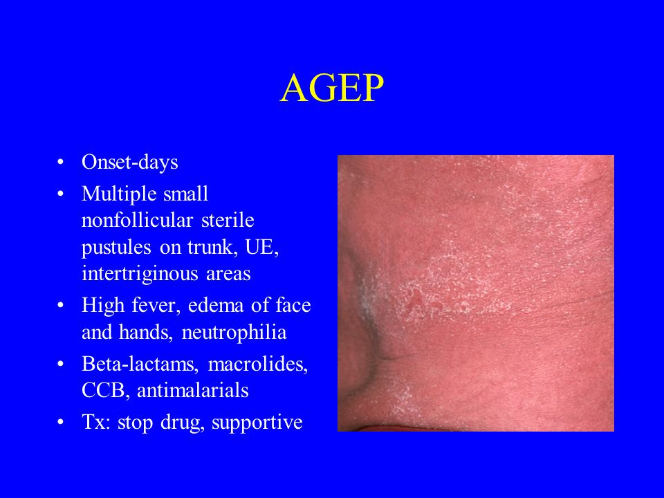 AGEP Onset-days Multiple small nonfollicular sterile pustules on trunk, UE, intertriginous areas High fever, edema of face and hands, neutrophilia Beta-lactams, macrolides, CCB, antimalarials Tx: stop drug, supportive