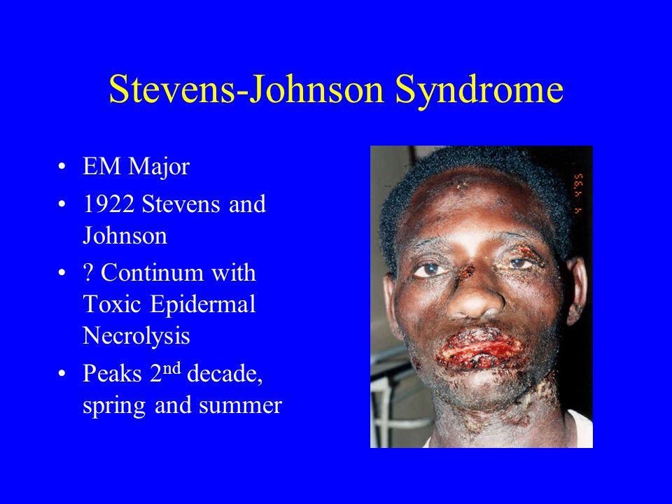 Stevens-Johnson Syndrome EM Major 1922 Stevens and Johnson .