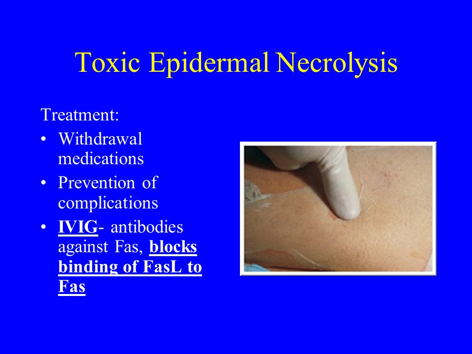Toxic Epidermal Necrolysis Treatment: Withdrawal medications Prevention of complications IVIG- antibodies against Fas, blocks binding of FasL to Fas