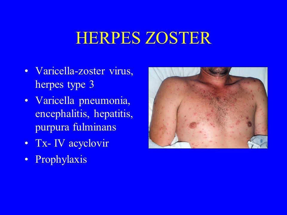 HERPES ZOSTER Varicella-zoster virus, herpes type 3 Varicella pneumonia, encephalitis, hepatitis, purpura fulminans Tx- IV acyclovir Prophylaxis