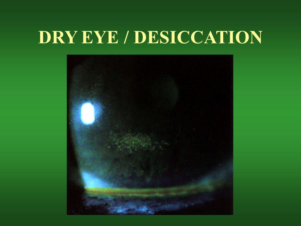 DRY EYE / DESICCATION
