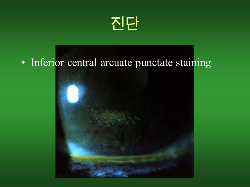 진단 Inferior central arcuate punctate staining