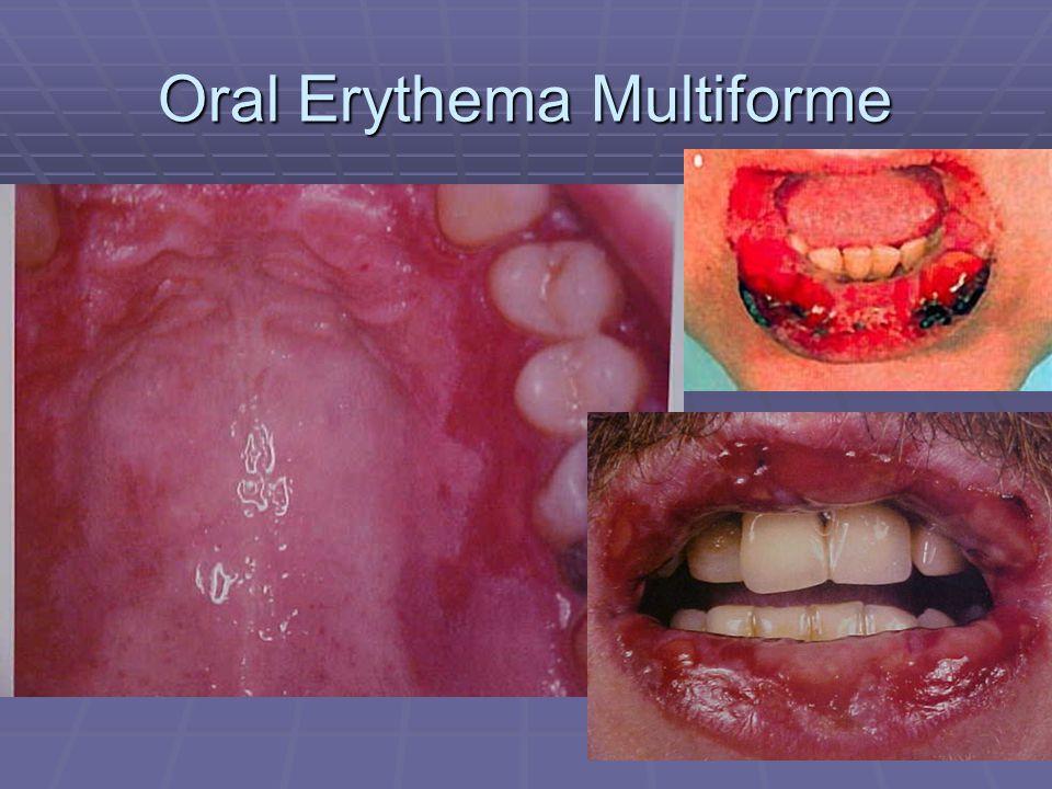 Oral Erythema Multiforme
