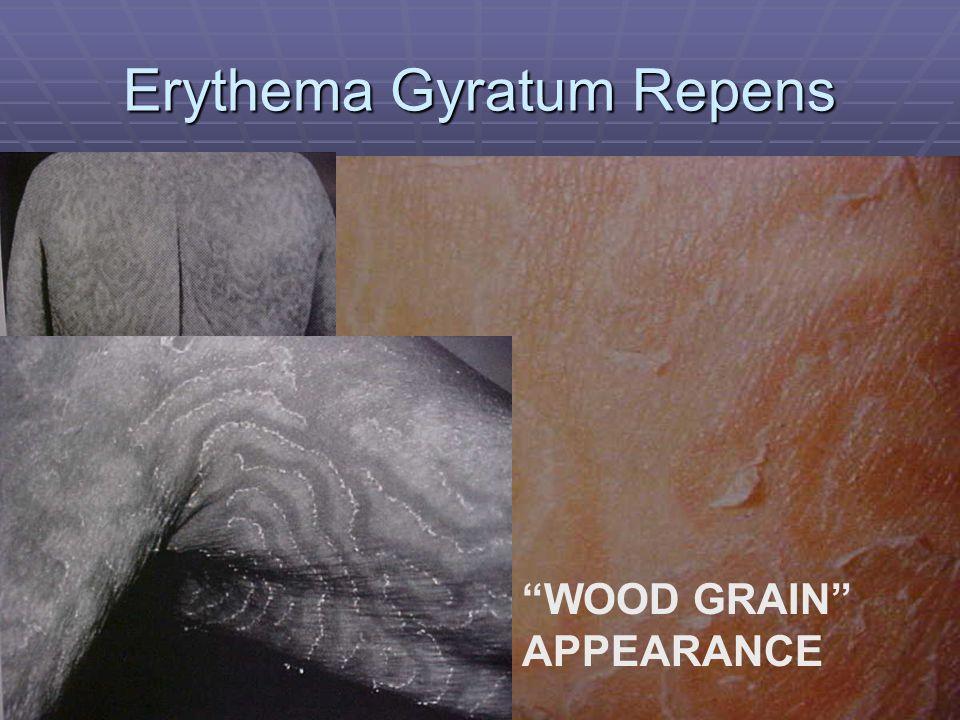 Erythema Gyratum Repens WOOD GRAIN APPEARANCE