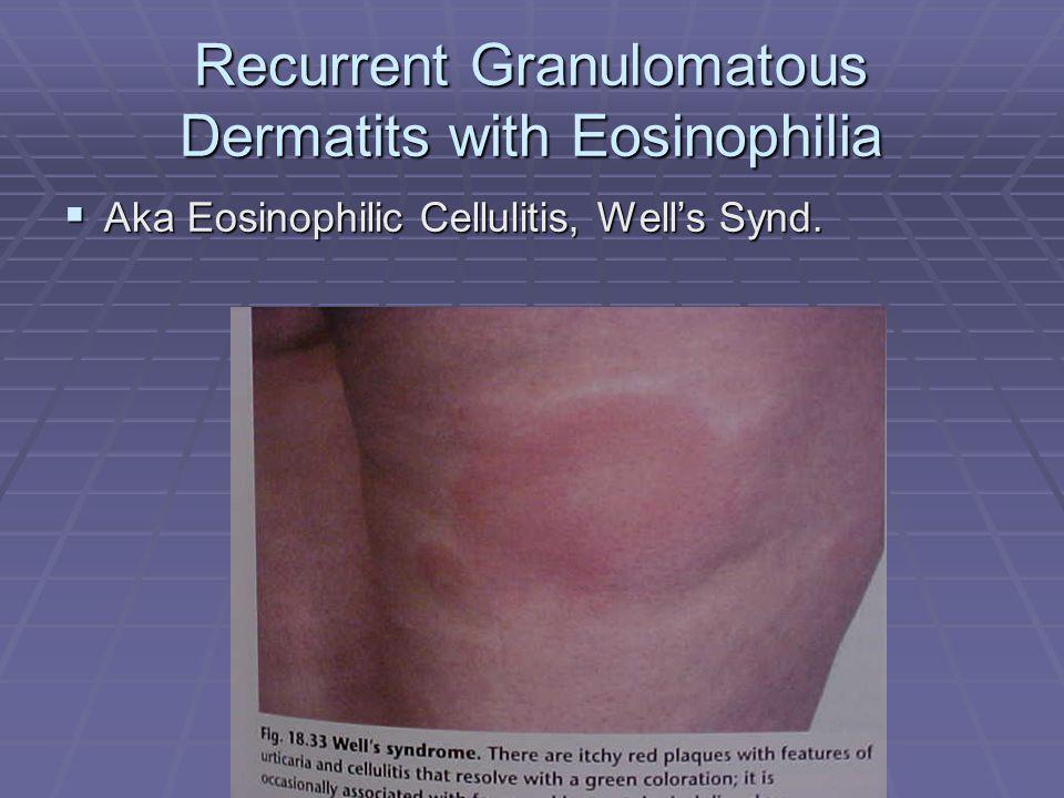 Recurrent Granulomatous Dermatits with Eosinophilia  Aka Eosinophilic Cellulitis, Well's Synd.