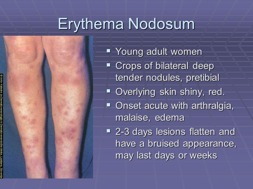 Erythema Nodosum  Young adult women  Crops of bilateral deep tender nodules, pretibial  Overlying skin shiny, red.