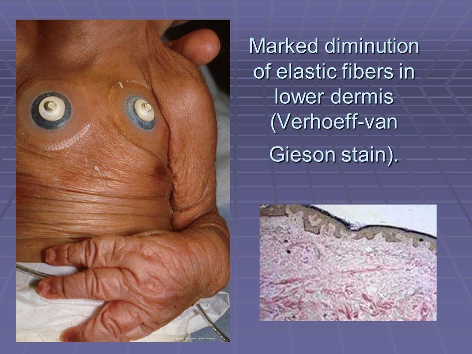Marked diminution of elastic fibers in lower dermis (Verhoeff-van Gieson stain).