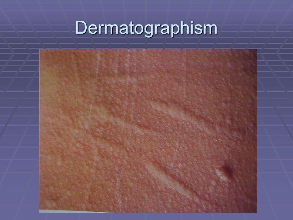 Dermatographism