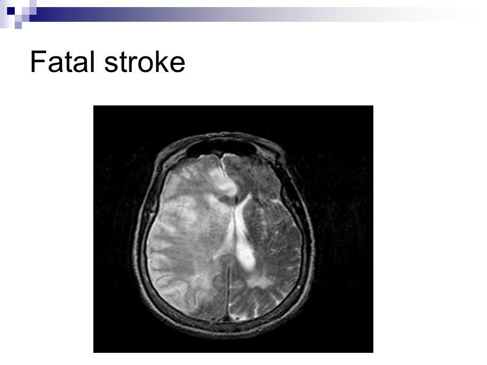 Fatal stroke