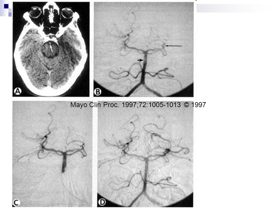 Mayo Clin Proc. 1997;72:1005-1013 © 1997