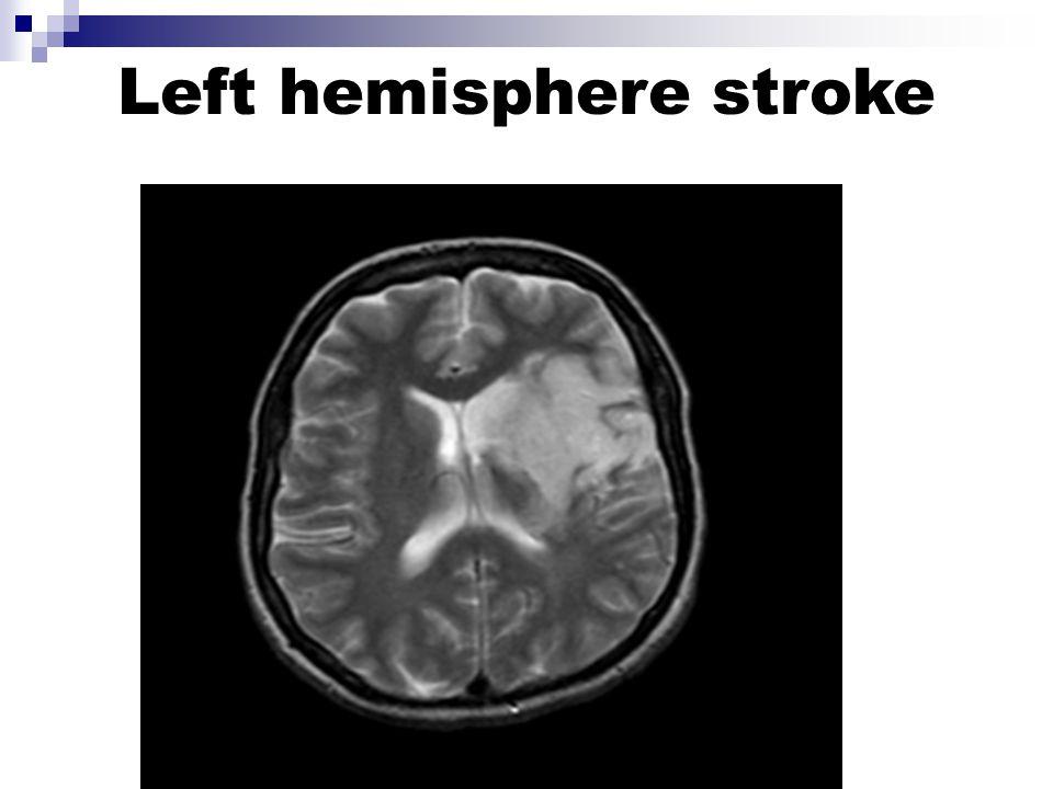 Left hemisphere stroke