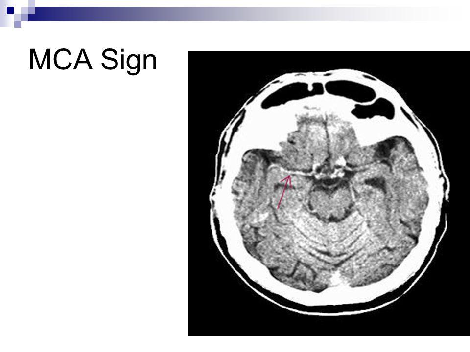 MCA Sign