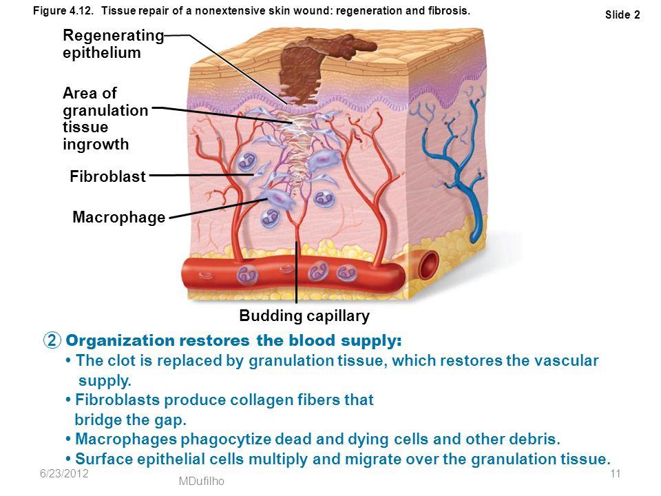 MDufilho Slide 2 Figure 4.12. Tissue repair of a nonextensive skin wound: regeneration and fibrosis. Regenerating epithelium Area of granulation tissu