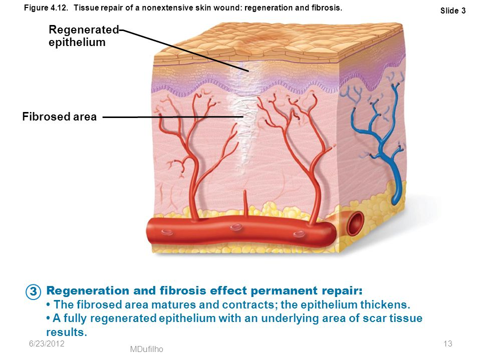 MDufilho Slide 3 Figure 4.12. Tissue repair of a nonextensive skin wound: regeneration and fibrosis. Regenerated epithelium Fibrosed area Regeneration